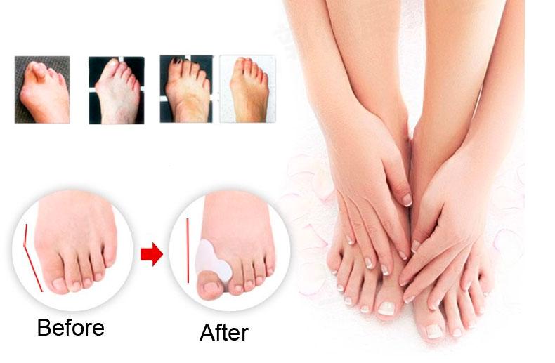 Накладки на пальцы ног от косточек
