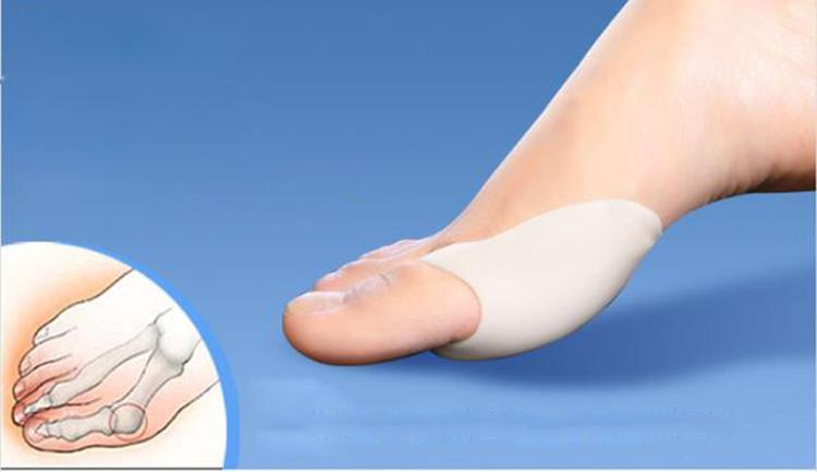 Лечение косточки на ноге  kostocheknet