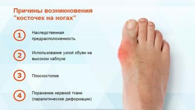Фиксатор для большого пальца ноги коррекция косточки на стопе